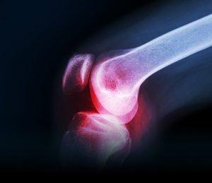 red knee bone