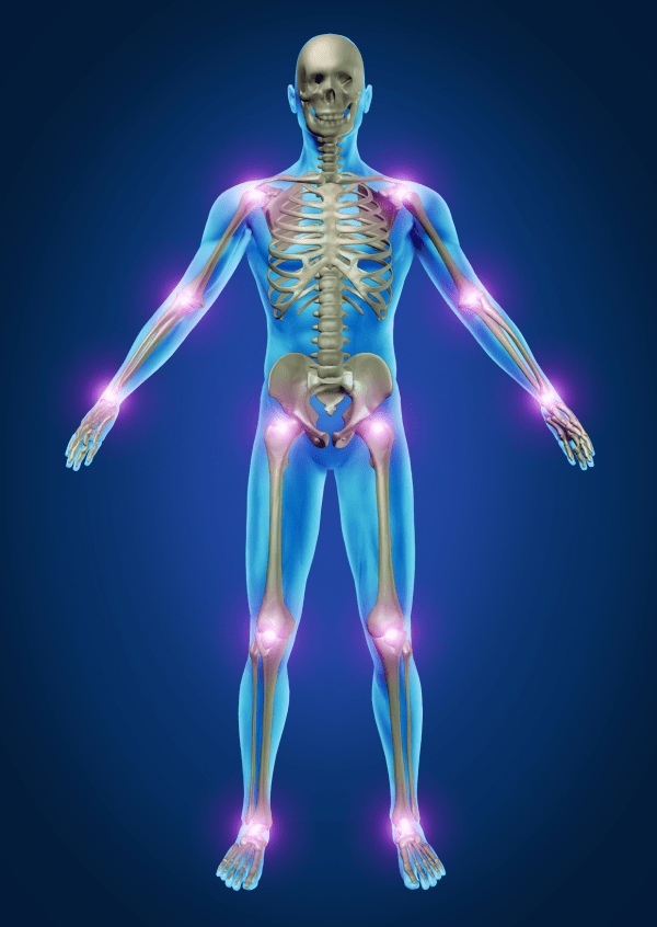 Skeleton explanation of Rheumatology